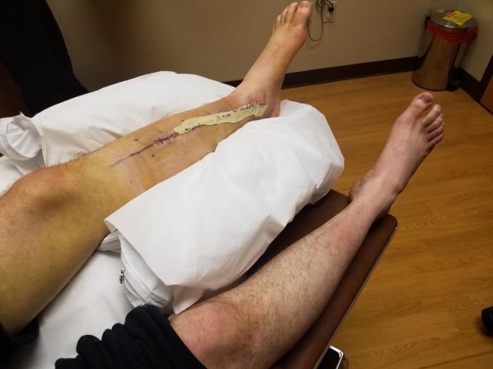 bryan jalg (3)
