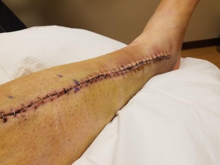 bryan jalg (4)