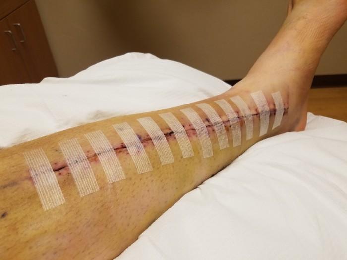 bryan jalg (5)